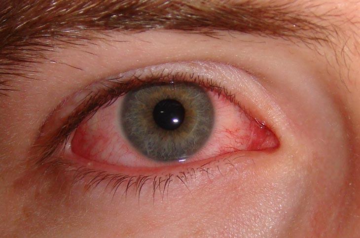 Konjuktivitis oka – simptomi i prirodno lečenje